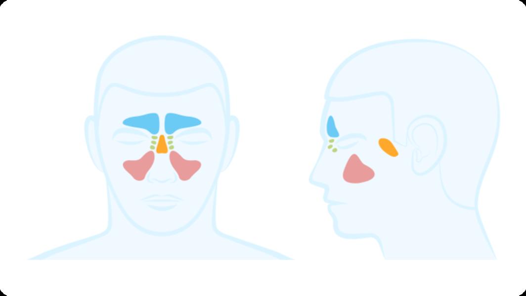 Stirn schmerzen nebenhöhlen Stirnschmerzen, Schmerzen